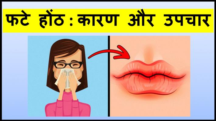 फटे होंठ : कारण और उपचार